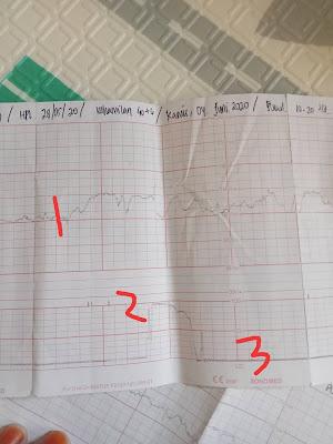 Hasil CTG Rekam Jantung Janin