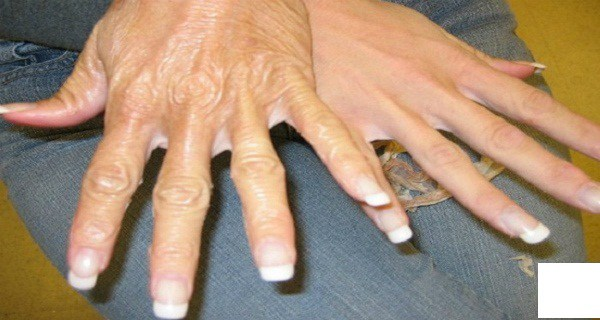 Amazing Recipe To Stop Your Hands From Revealing Your Age