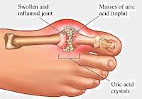 Gut Hastalığı Nedir tedavisi