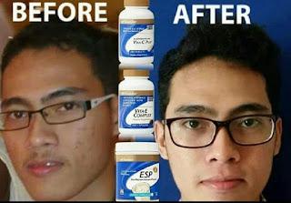 Kebaikan Vitamin E Untuk Kecantikan Kulit & Kesuburan Lelaki