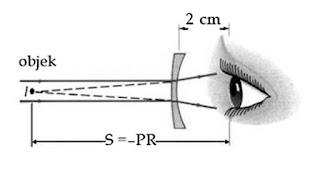miopi lensa optik mata