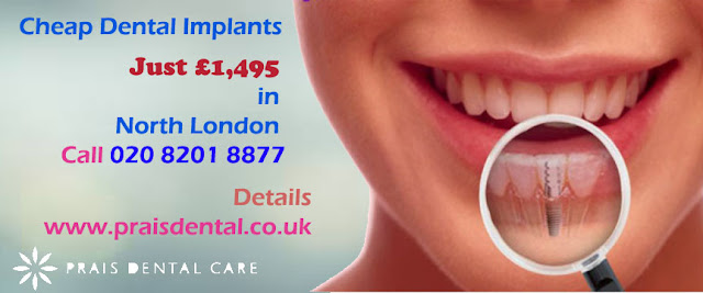 Low Cost Dental Implants In North London
