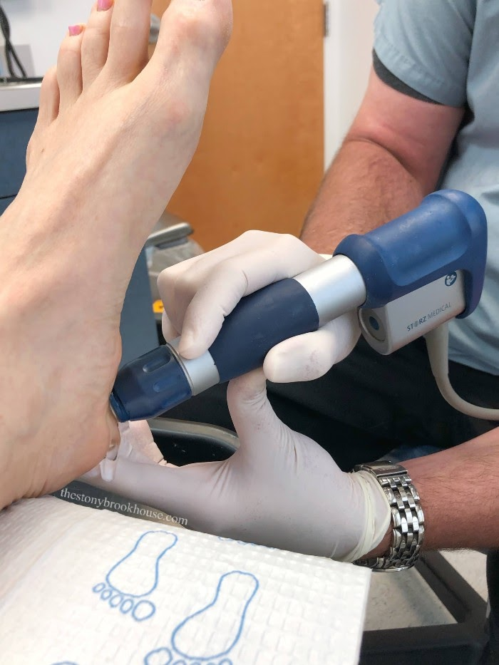 Receiving Shockwave treatment for plantar fasciitis