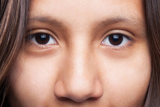 Get to Know More About Glare Eye Disorders