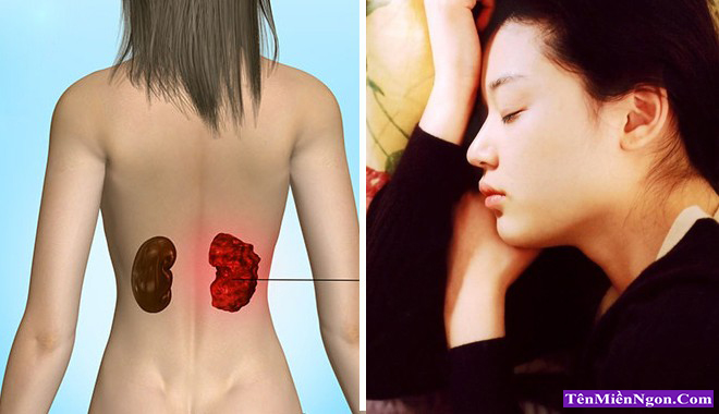 Các dấu hiệu của ung thư Thận