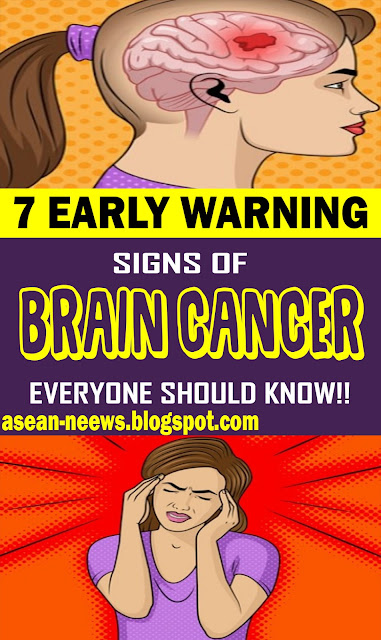 7 Early Warning Signs Of Brain Cancer Everyone Should Know