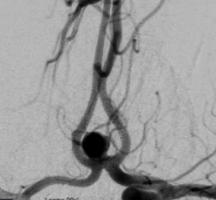 前交通動脈瘤