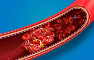 Blood clots with covid