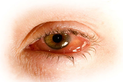 Sometimes it creates an inflammation of the eye by the herpes simplex virus type  Herpes Simplex Treatment - What Is Herpes Simplex?