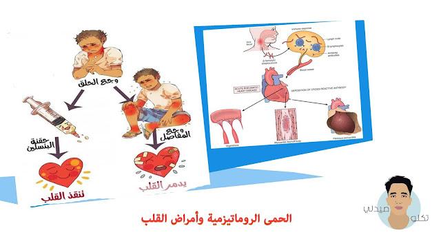 الحمى الروماتيزمية وأمراض القلب