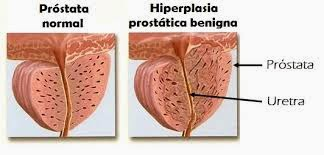 enfermedad de la próstata que es