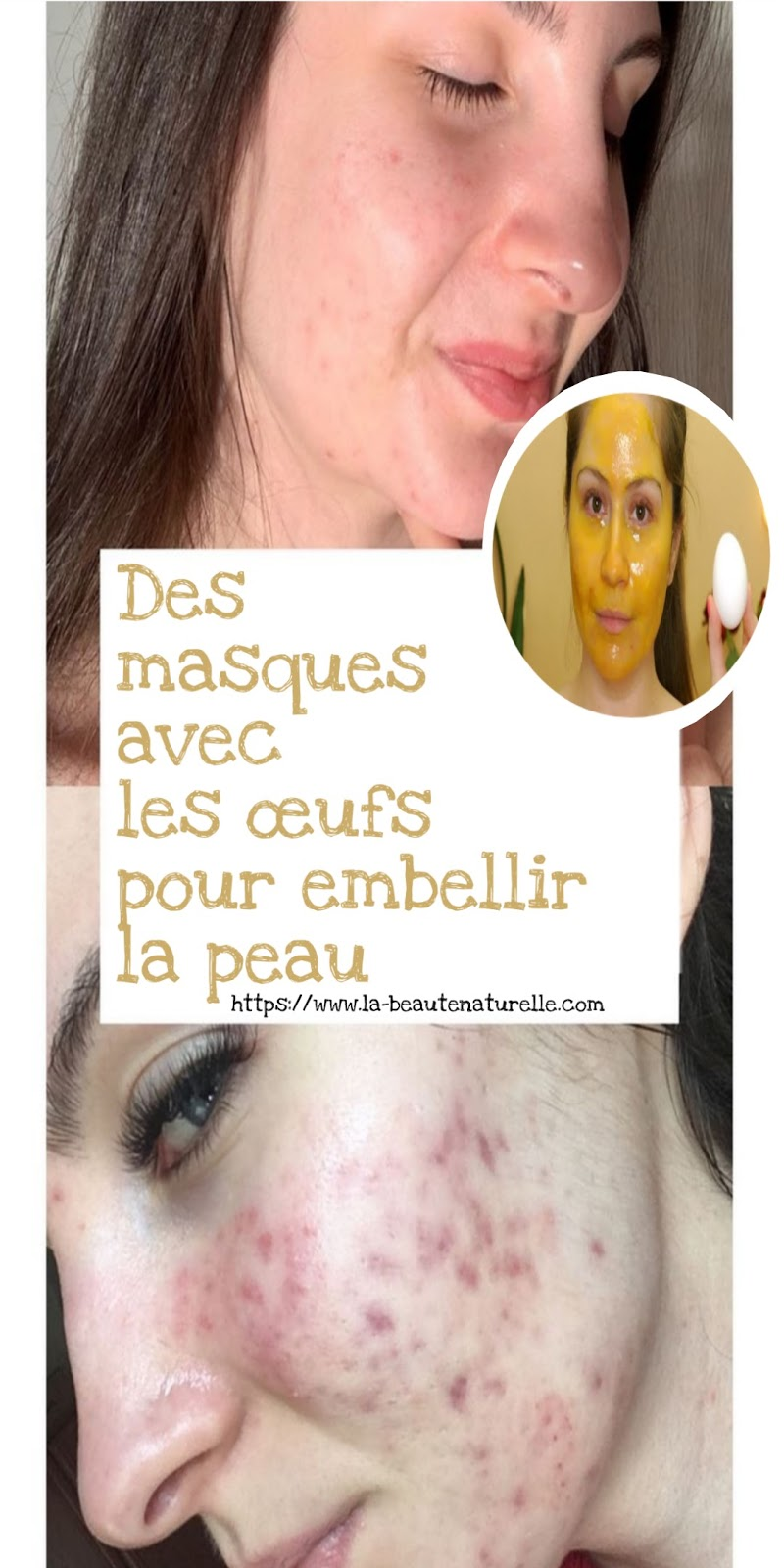 Des masques avec les œufs pour embellir la peau