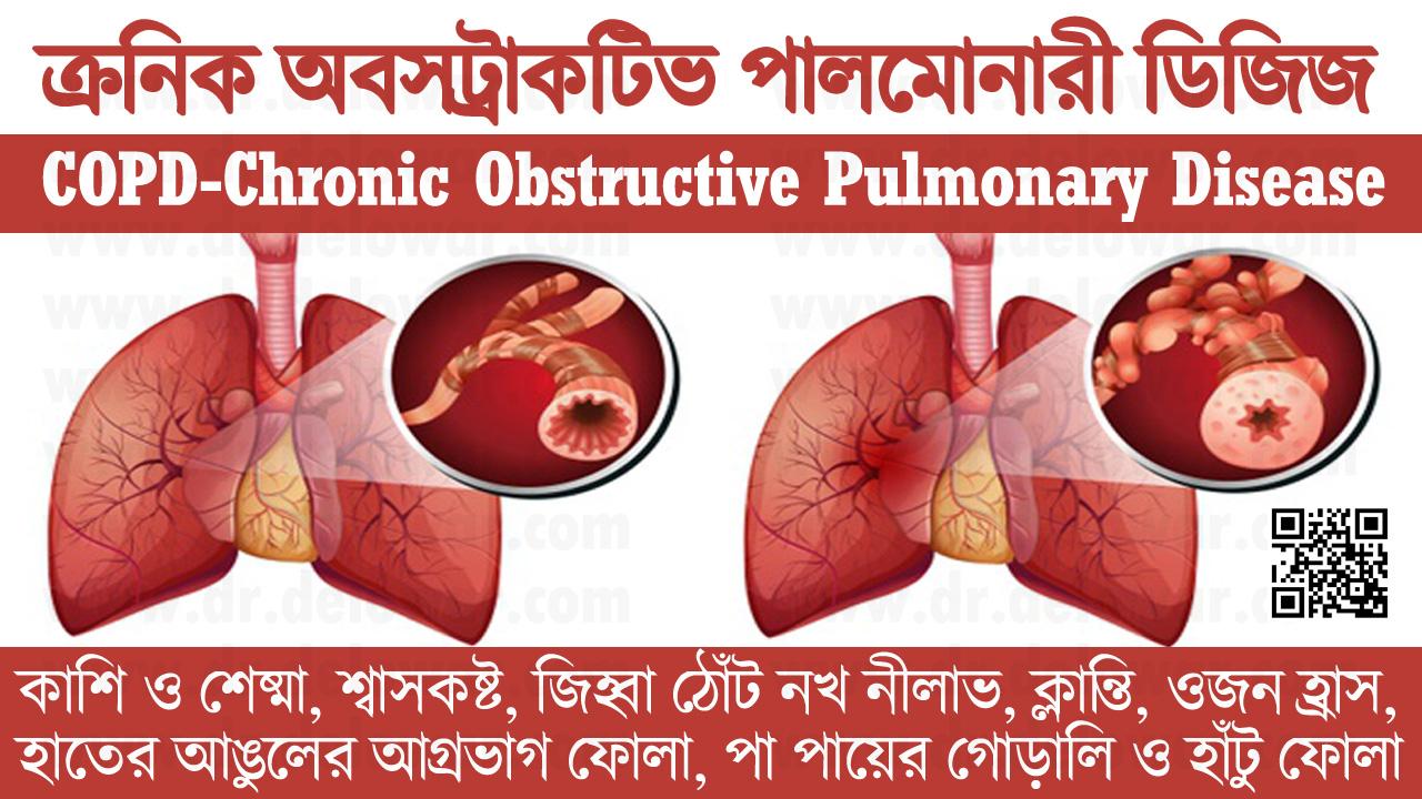 COPD-Chronic Obstructive Pulmonary Disease
