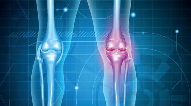 Sakit Lutut Osteoarthritis