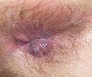 Hemorroides Tratamiento