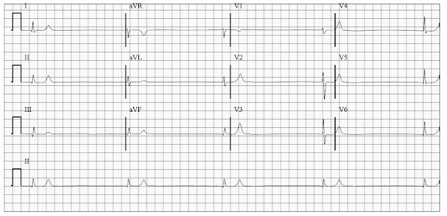 Junctional Bradycardia