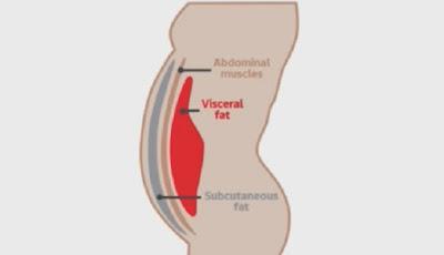 Gambar letak lemak visceral di perut.