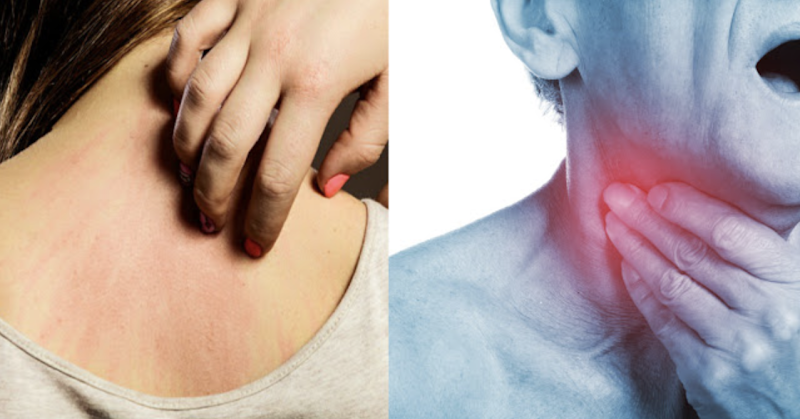 Early Warning Signs That Cancer Is Growing In Your Body