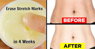 These methods remove stretch marks after pregnancy