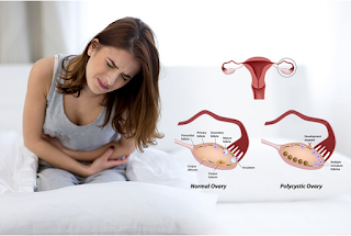 http://kasturihospitals.com/gynaecology/pcos.html