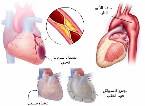 أمراض القلب المتسببة في آلام الظهر