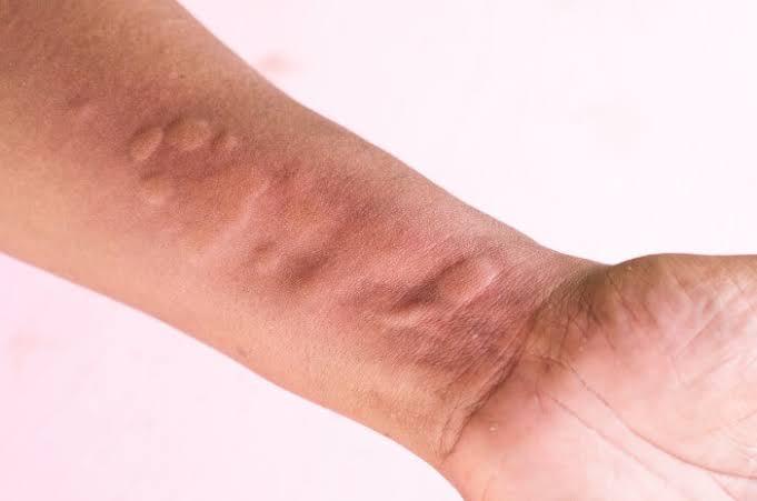 4 Jenis Obat Gatal Alergi di Apotik Yang Ampuh