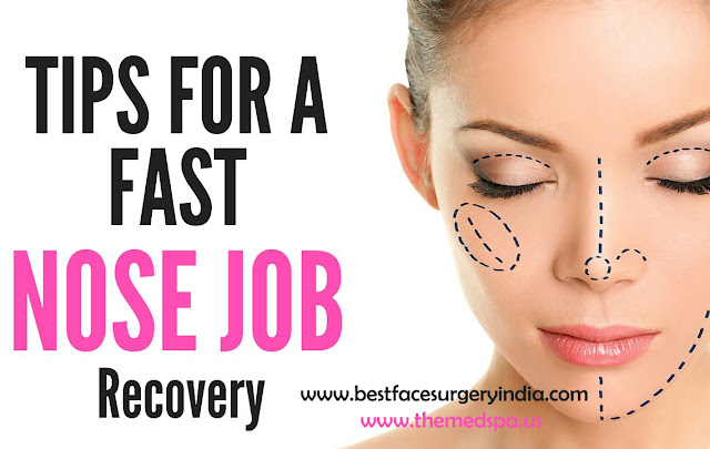 Nose Job – Quick guide to recovery