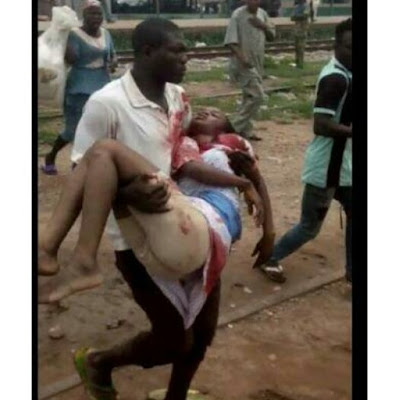 Lady Hit By Stray Bullet During Ibadan Clash Dies (Graphic Photo)