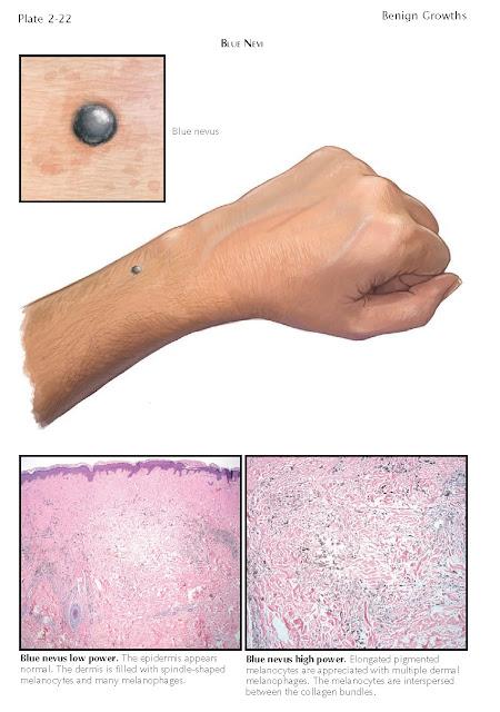 Melanocytic Nevi, Histology Melanocytic Nevi, Pathogenesis Melanocytic Nevi, Treatment Melanocytic Nevi