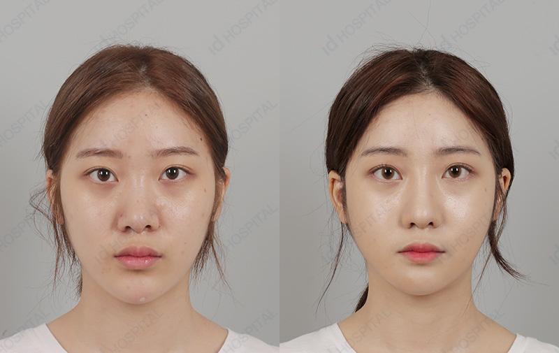 operasi plastik di korea selatan