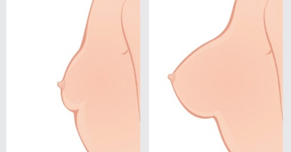 Want To Make Your Chest Perfectly Perky In Just A Week? You Should Try This!