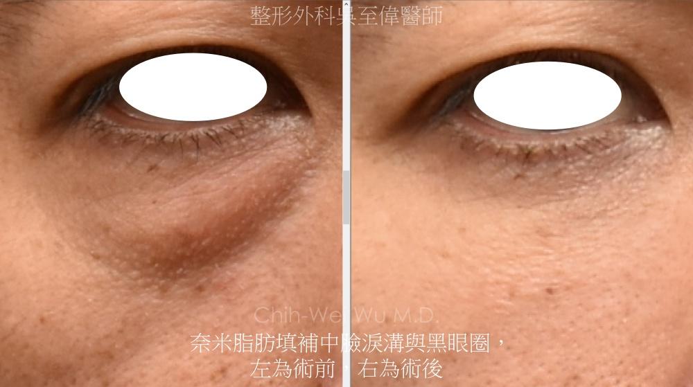 奈米脂肪改善淚溝與黑眼圈