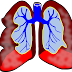 Mesothelioma and Malignant Pleura Issues and Treatment
