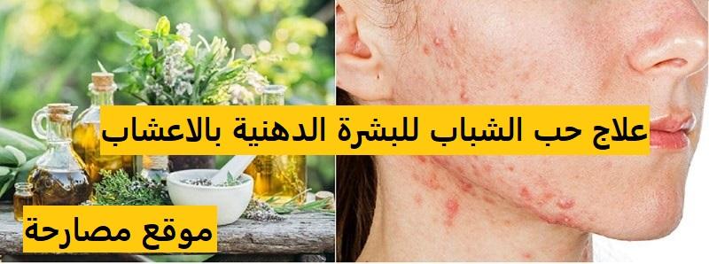 علاج حب الشباب للبشرة الدهنية بالاعشاب