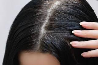 Penyebab Rambut Beruban Di Usia Dini