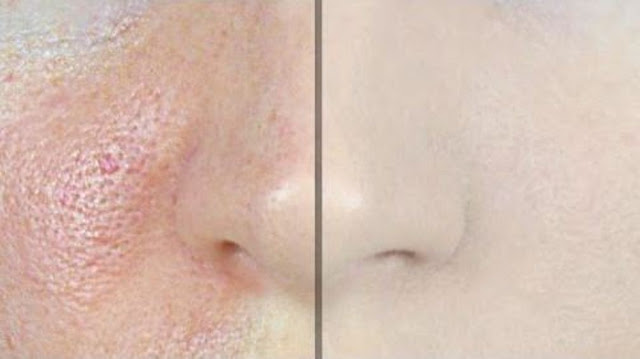How to Make Pores Disappear with Only 1 Ingredient!