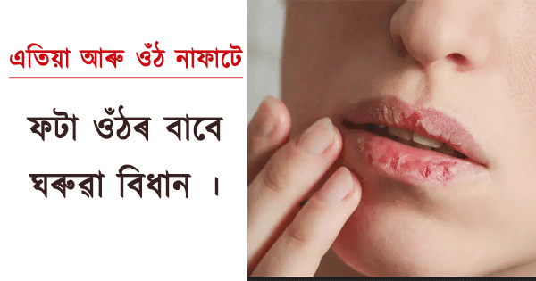 Home Medicine Tips for Cracked Lips in Hindi