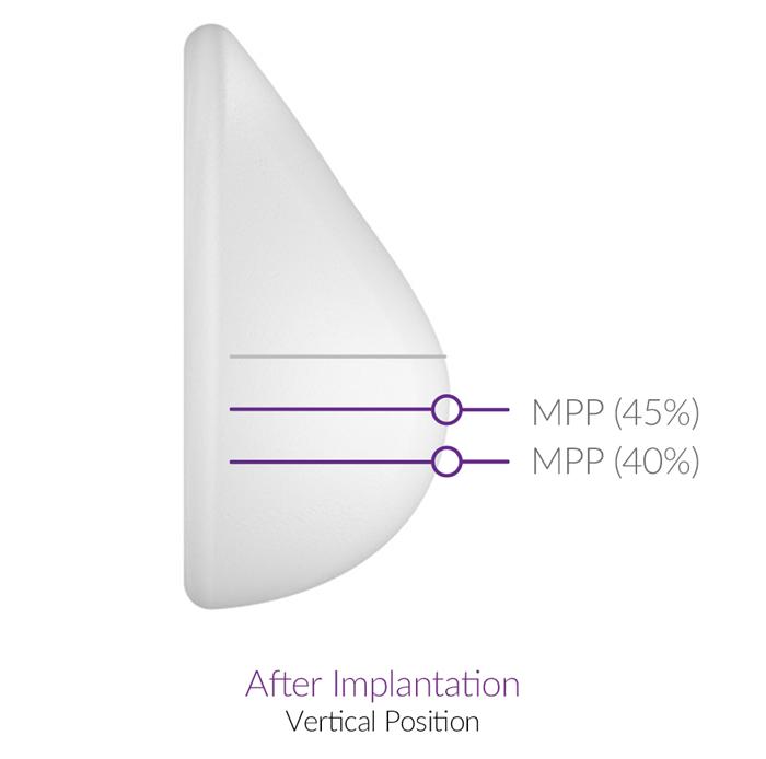 Motiva 魔滴隆乳後,在坐起來或站立時,最凸點會出現在高度45-55比例的位置,是符合人體自然乳房的黃金比例