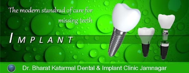 dental implant treatment at dr. bharat katarmal dental clinic Jamnagar