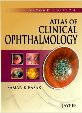 Atlas of Clinical Ophthalmology 2nd Edition (2013) [PDF