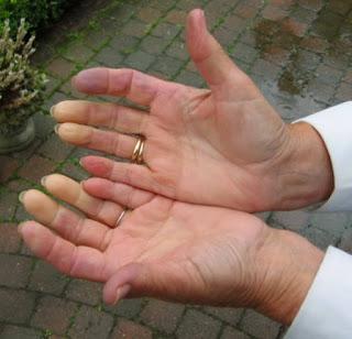 Komplikasi Jangka Panjang Tentang Scleroderma