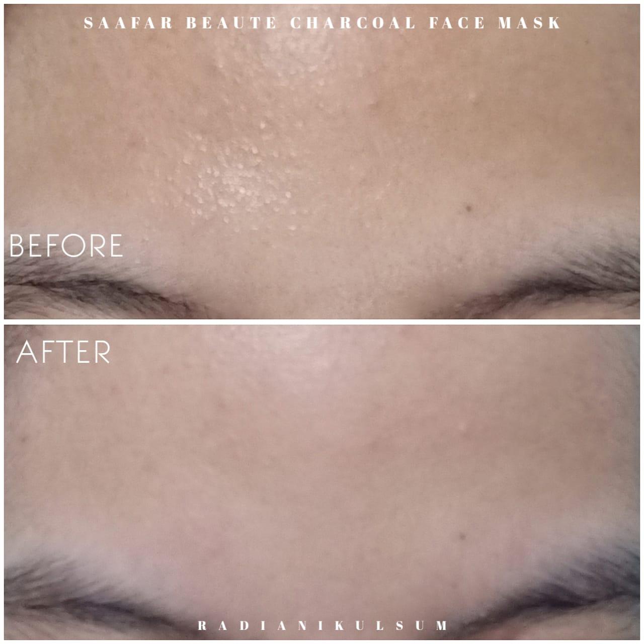 before-after pemakaian masker charcoal Saafar Beaute di dahi