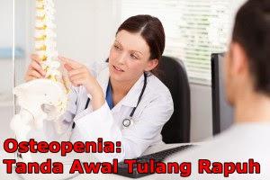 http://www.kateginting.com/2017/05/osteopenia-tanda-awal-tulang-rapuh-osteoporosis.html
