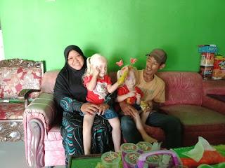 Beerkenalan dengan Anak Albino Kembar yang Viral di Wonogiri