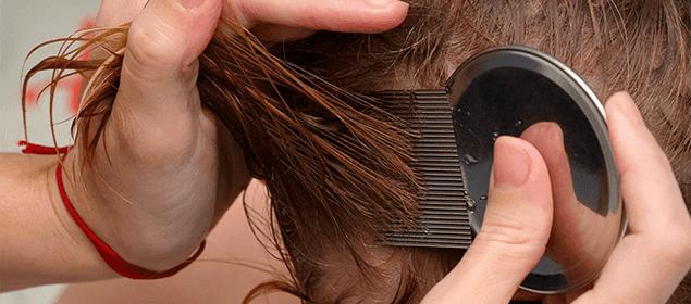 cómo eliminar los piojos