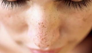 Wow! Hilangkan Bekas Jerawat Dengan Masker Wajah Alami Ini