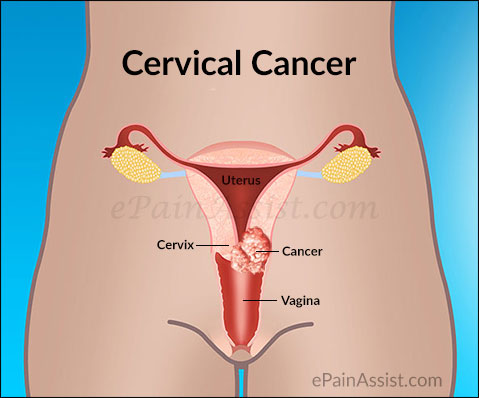 Beware These Early Symptoms Of Cervical Cancer