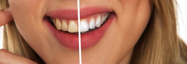 Eliminar manchas en dientes