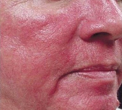 Cura de la Rosacea con Homeopatia