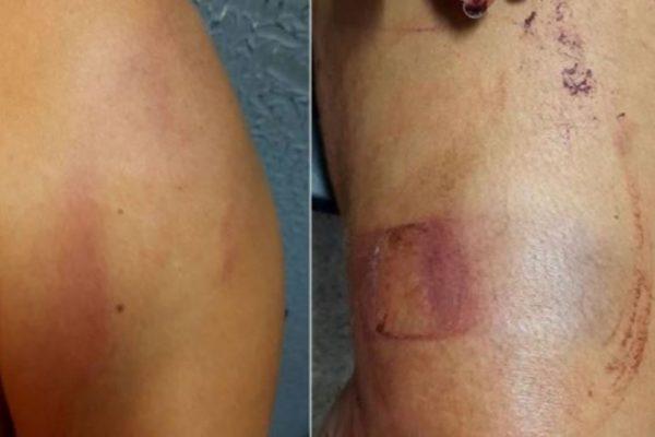 Esposa é agredida pelo marido com golpes de facão